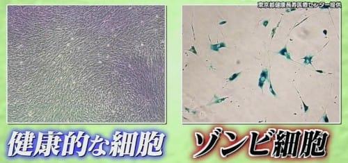 健康的な細胞とゾンビ細胞