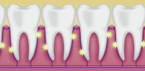 歯根膜機械受容器を刺激