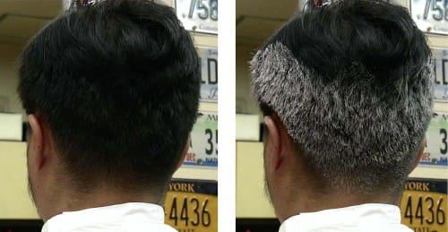 白い 粉 髪の毛